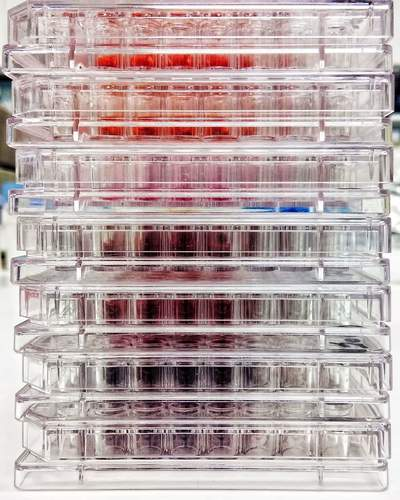 Photo of 96 well plates containing three types of cytotoxic assays (MTT, XTT, LDH)